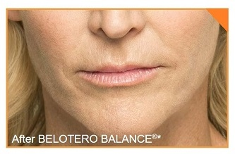 Belotero Mouth 1B
