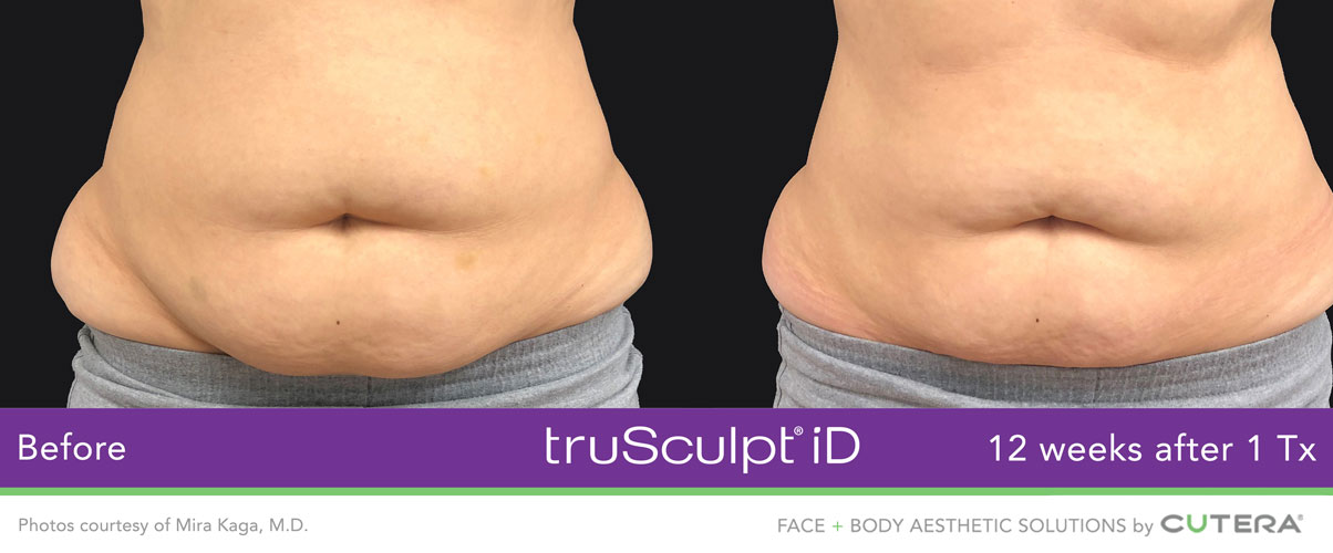 truSculpt ID Before and After