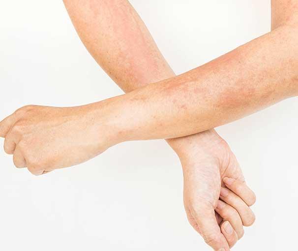 Eczema 3