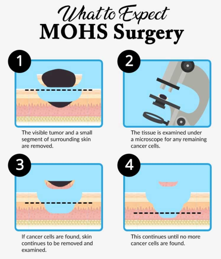 Mohs Surgery 4